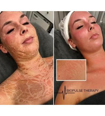 10-Week Peel & BioPulse Treatment - 3